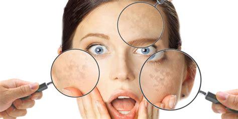 pelle disidratata alimentazione pelle secca o disidratata differenze e rimedi estetica