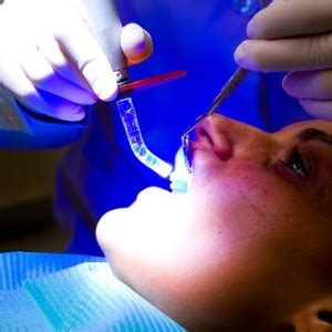 light cure composite filling what happens when you get a dental filling