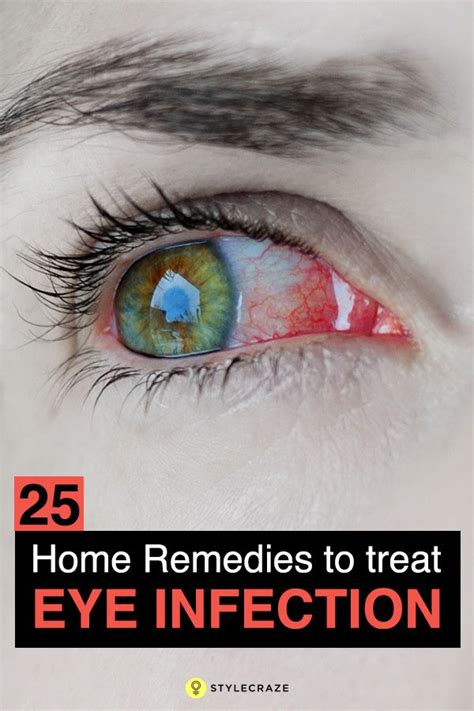 25 best ideas about eye infections on eye