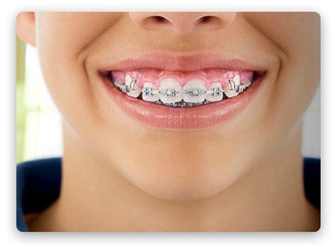 apparecchi dentali interni ortodonzia tradizionale per le malocclusioni dentali nel