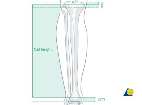 acceptable nail length acceptable nail length tibial shaft reduction fixation ao
