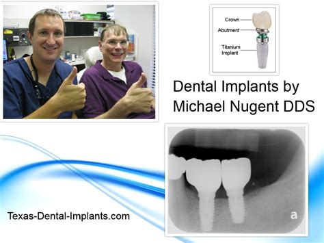 comfort dental root canal cost pasadena texas dental implants michael nugent dds