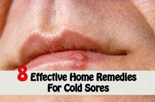 cold sores home remedies from canada home and gardening ideas at home and gardening ideas we