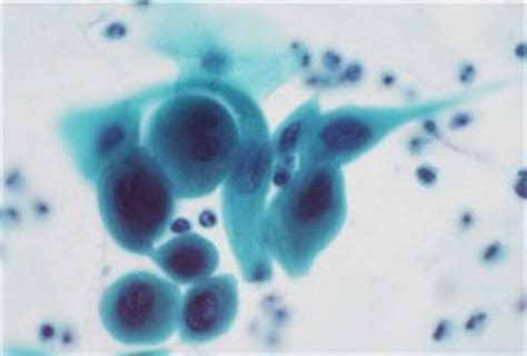 pap test metaplasia pap smear interpretation