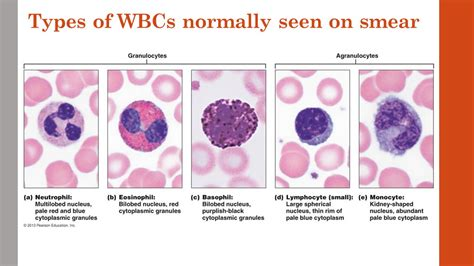 types of lecture 2 and 3 leukopoiesis bone marrow wbc disorders