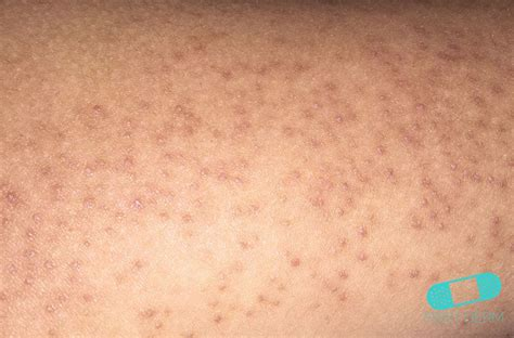 dermatology how to treat the bumps on your arms