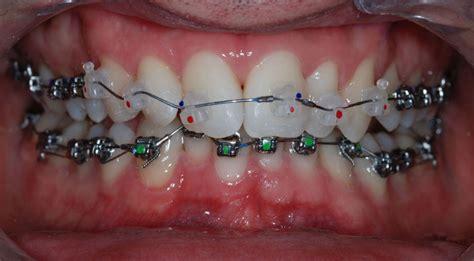 apparecchio interno fisso ortodonzia e ortodonzia estetica disturbi della