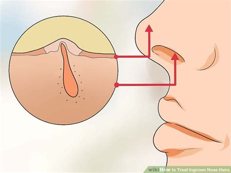 growth rarely happens inside your how to treat ingrown nose hairs 11 steps with pictures