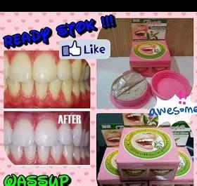 Rasyan Pemutih Gigi kintan aishah rasyan herbal clove toothpaste ubat gigi
