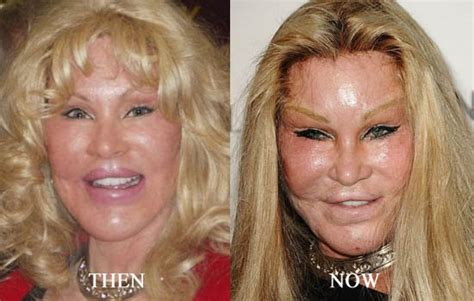 did hillary clinton have plastic surgery 2015 jocelyn wildenstein plastic surgery before and after face