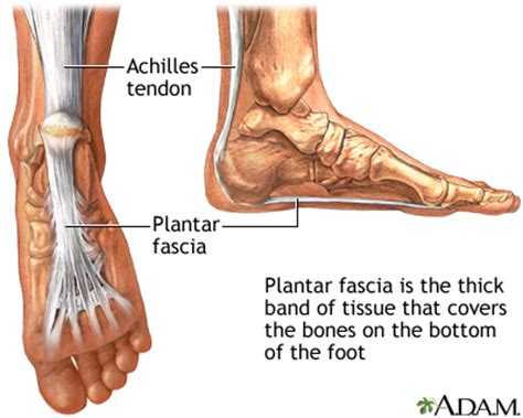 Planters Faciitis by Plantar Fascia Medlineplus Encyclopedia Image