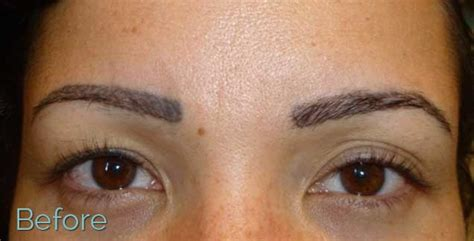 remove tattoo eyebrows juvessentials is 1 for cosmetic tattooing and