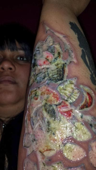 infected tattoo on back sues black ink studio for infected the source