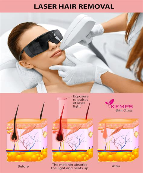 laser hair removal can benefit dark skinned people spa cielo kemps skin clinic