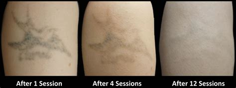 salabrasion tattoo removal tattoo collections