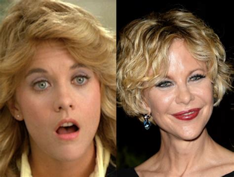 when did meg ryan have a face lift meg ryan plastic surgery before and after photos