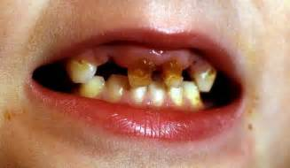 rotten teeth there s a dentistry crisis because many are losing rotten teeth says dental