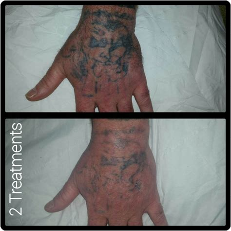 tattoo removal kennewick wa laser removal cheltenham forever clinic cheltenham