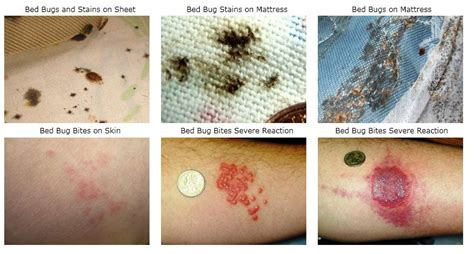 bed bugs bites pictures and symptoms bed bug symptoms pictures when they appear and treatment