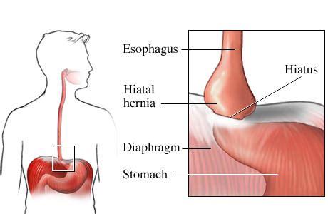 hiatus hiatal hernia symptoms  pictures diet  surgery