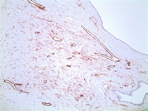 Hhf35 Pathology Outlines by Of The Week 269