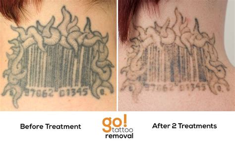 tattoo removal after one treatment great progress after two laser removal treatments