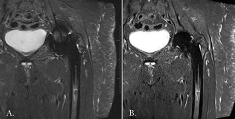 nyu imaging interventions radiology