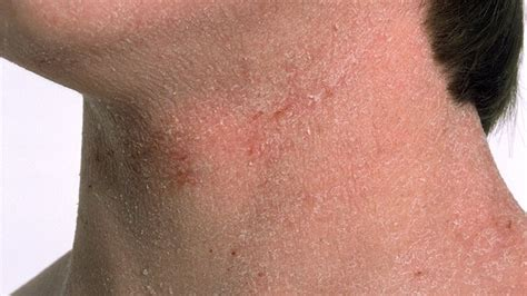 rash on s neck autoimmune skin diseases and rashes that affect appearance