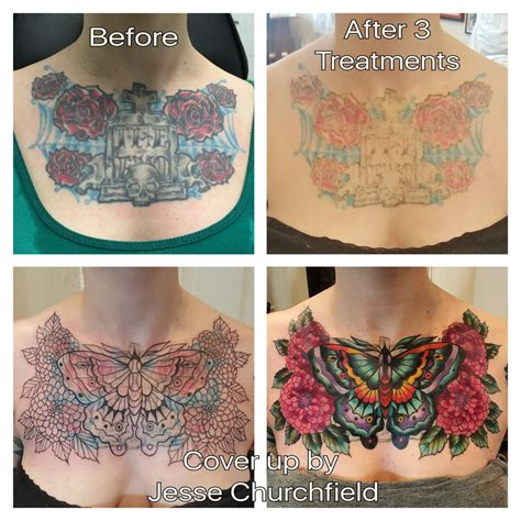 chest tattoo removal before after 100 chest cover up 2 tribal