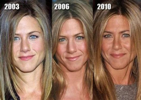 jennifer aniston plastic surgery before amp after pictures