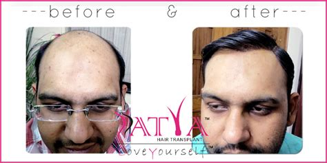 reviews on synthetic hair transplant synthetic hair transplant nido biofibre hair implant in