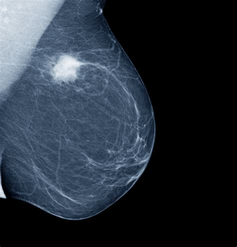 mammogram images earlier more frequent mammograms lead to more false
