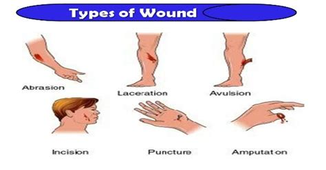 types of wound dressing pictures what are the types of wound health