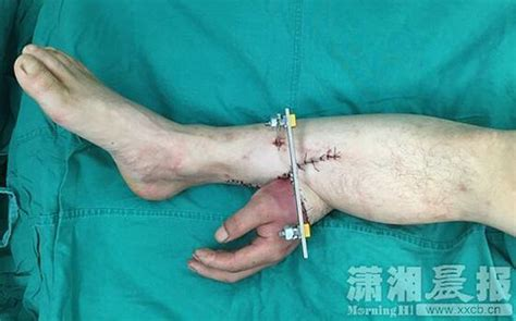 Löwe Arm by Doctors Graft To S Leg For A Month To Keep It