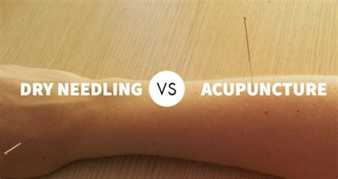 acupuncture  dry needling      das