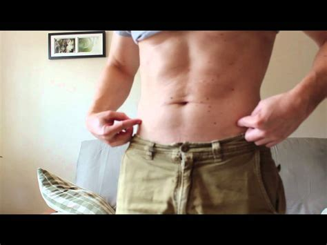 coolsculpting results did the loss procedure work