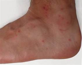 what do bed bug bites look like 7 bite symptoms with