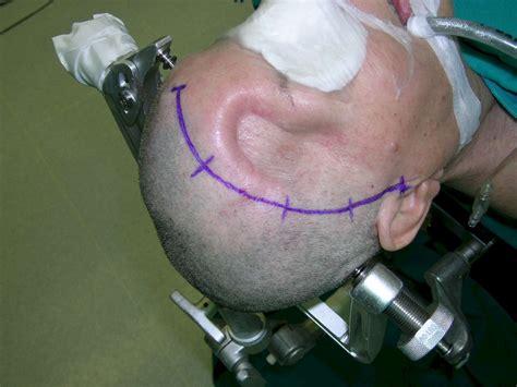 sfinterotomia laterale interna post operatorio pin foto di chirurgia estetica vanilla chamu da giapponese