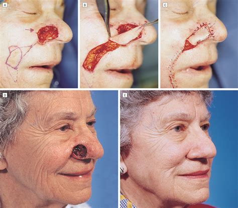 reconstruction after mohs surgery books reconstruction of nasal alar defects plastic