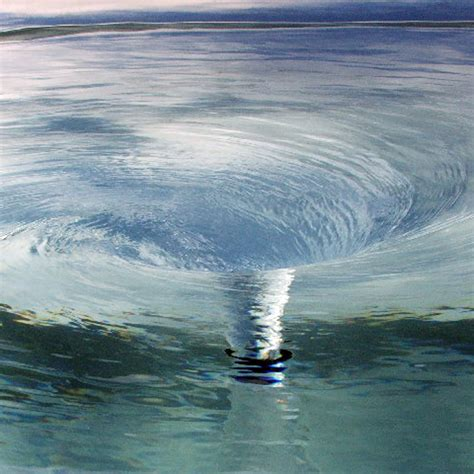whirlpool images whirlpool illustration image radiopaedia org