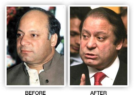 scalp micropigmentation in pakistan former pakistan prime minister nawaz sharif had a hair