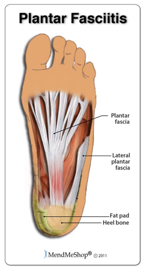 Planter Facia by What Is Needling Plantar Fasciitis