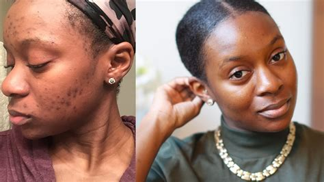 scar removal cream for african americans how to remove scars on african american skin ehow clear