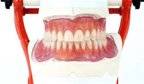 protesi totale mobile protesi dentarie mobili laboratorio protesi dentarie