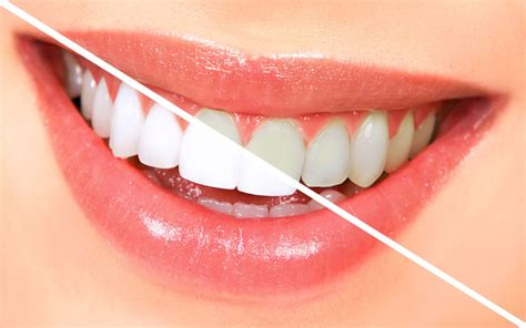teeth whitening guide   beautiful smile dentalsreview