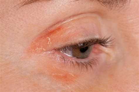 eye infection symptoms pictures info eye infection