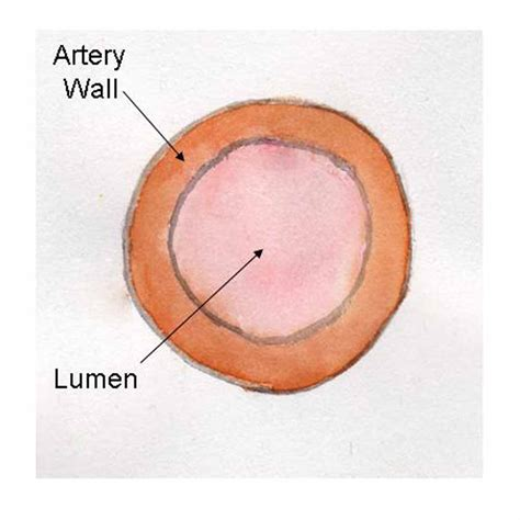 cross section of an artery angina