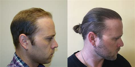 correct haircut transplant best hair transplant results hairstylegalleries com