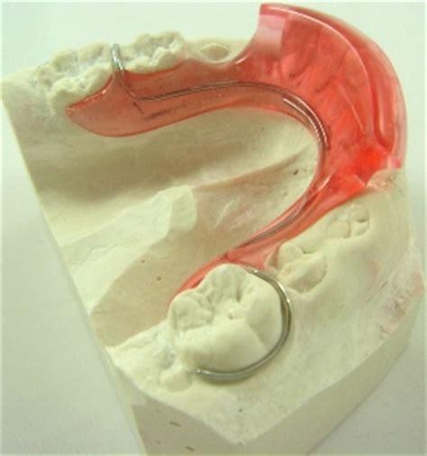Veneer Pemutih Gigi macam macam behel lepasan bagian 1 veneer gigi kawat
