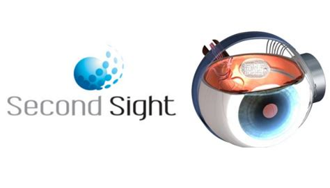 Second Sight by Second Sight Reveals 1st Implant Of I Visual